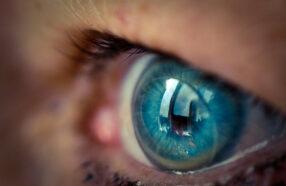 قیمت لنز طبی تحت تاثیر چه عواملی است؟