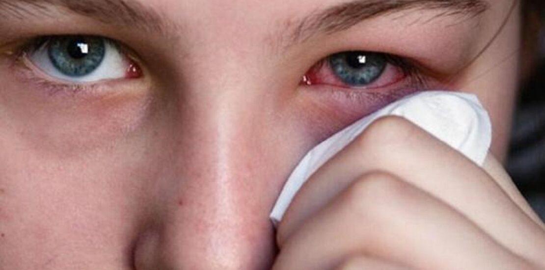 با راهکارهای درمان عفونت و التهاب چشم آشنا شوید