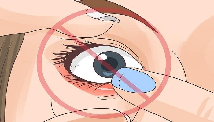 خارج کردن لنز شکسته از چشم