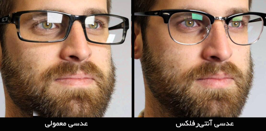 با انواع پوشش عدسی عینک آشنا شوید؛ از ضد UV تا ضد خش