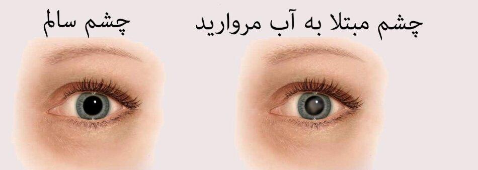 بیماریهای چشم که به سن مربوط میشوند را با تغذیه مناسب درمان کنید