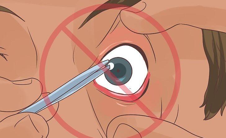 لنز شکسته را چگونه از چشم خارج کنیم؟