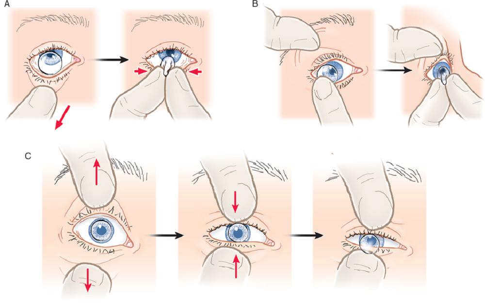 چطور لنز را برداریم : روش صحیح برداشتن لنز از چشم به همراه نکات آموزشی برای مبتدیها   بلاگ لوناتو