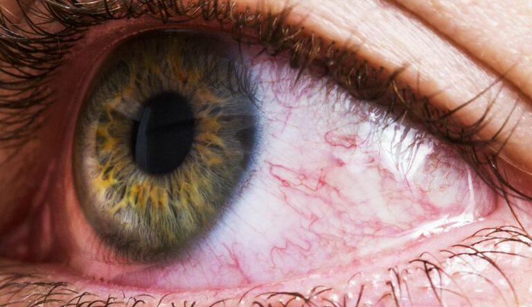 ۷ دلیل قرمز شدن چشم بعد از گذاشتن لنز؛ از خشکی چشم تا برعکس بودن لنز