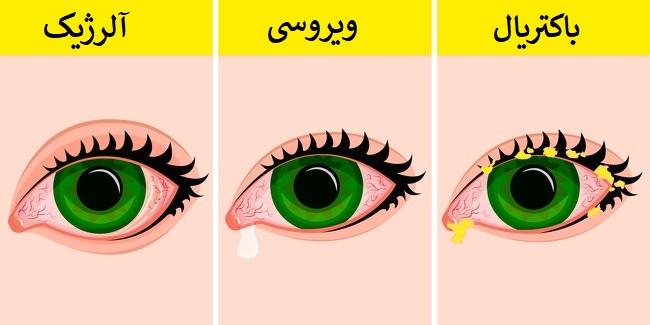 ۱۴ روش کاربردی برای پیشگیری و درمان عفونت چشمی در خانه
