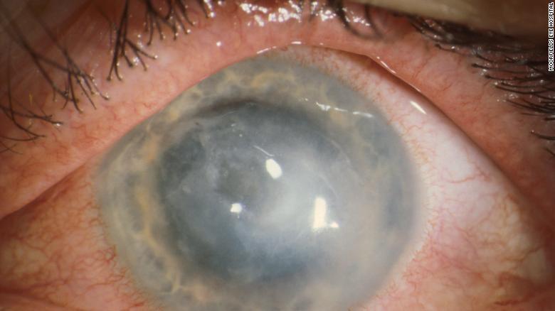 شیوع عفونت چشمی جدیدی در میان کاربران لنز تماسی