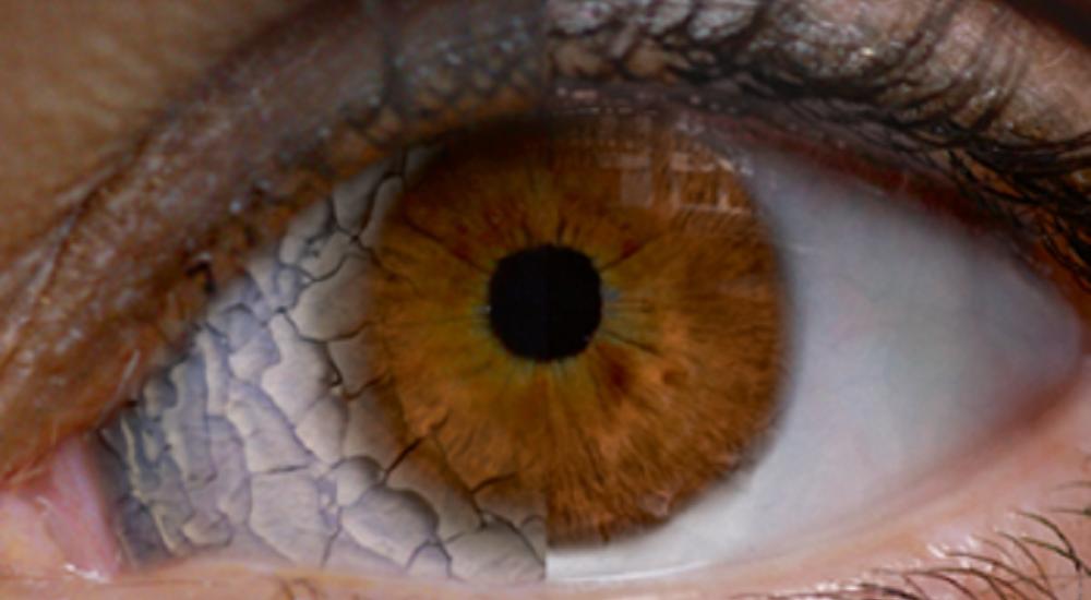 رطوبت هوا بر سلامت چشم چه تاثیری دارد؟