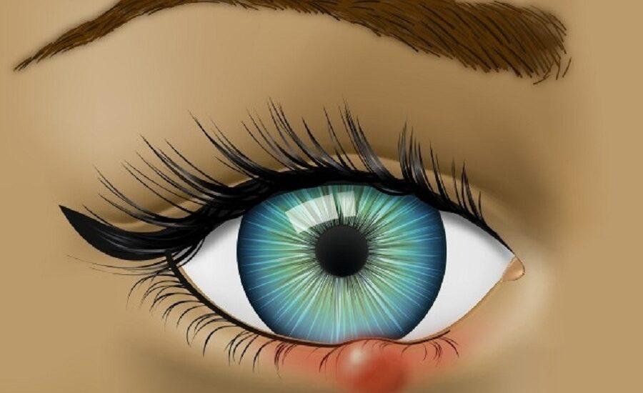 ۸ موردی که چشم ها در مورد سلامت شما می گویند