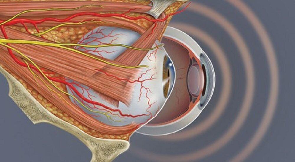 آیا میدانستید چشم هم سکته میکند؟
