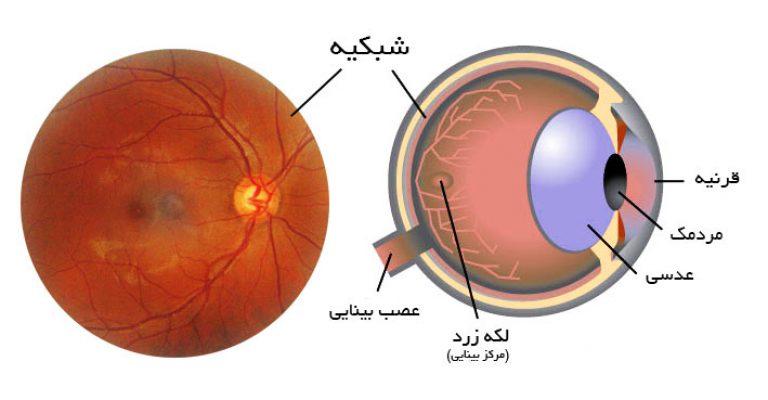برای تشخیص زودهنگام بیماریهای شبکیه چکار میتوان کرد؟