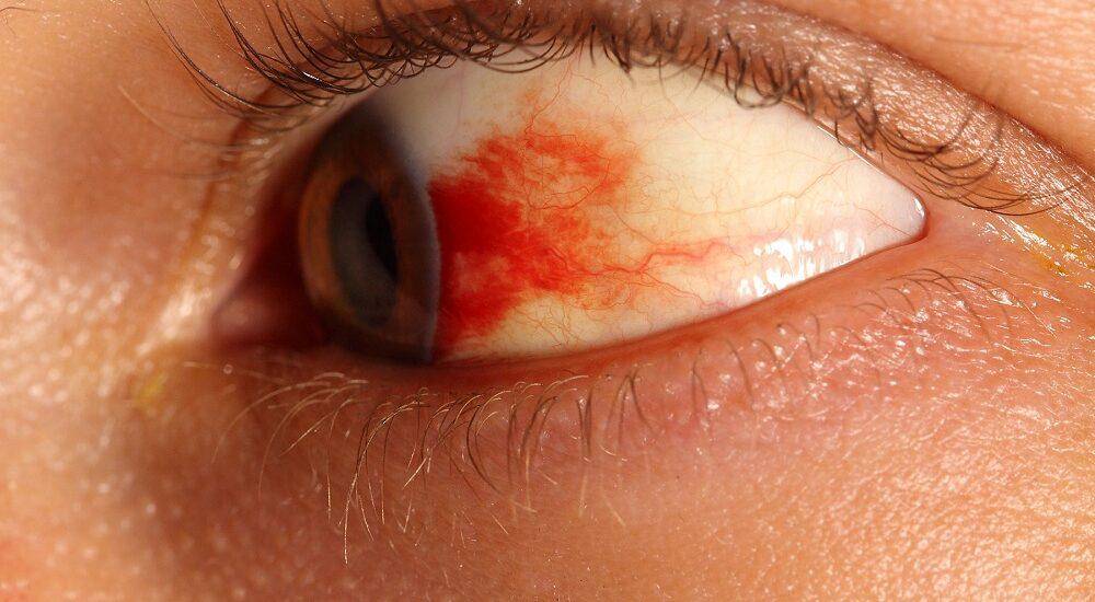 مراقب خونریزی چشمهایتان باشید