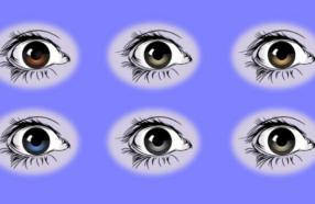 چشم ها در مورد سلامتی شما چه میگویند؟