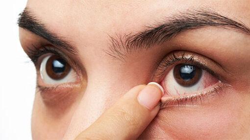 بعد از عمل لازک چه علائم موقتی به وجود میآید؟