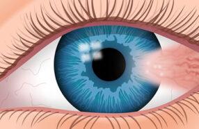 برای پیشگیری از ناخنک چشم چه کارهایی باید انجام دهیم؟