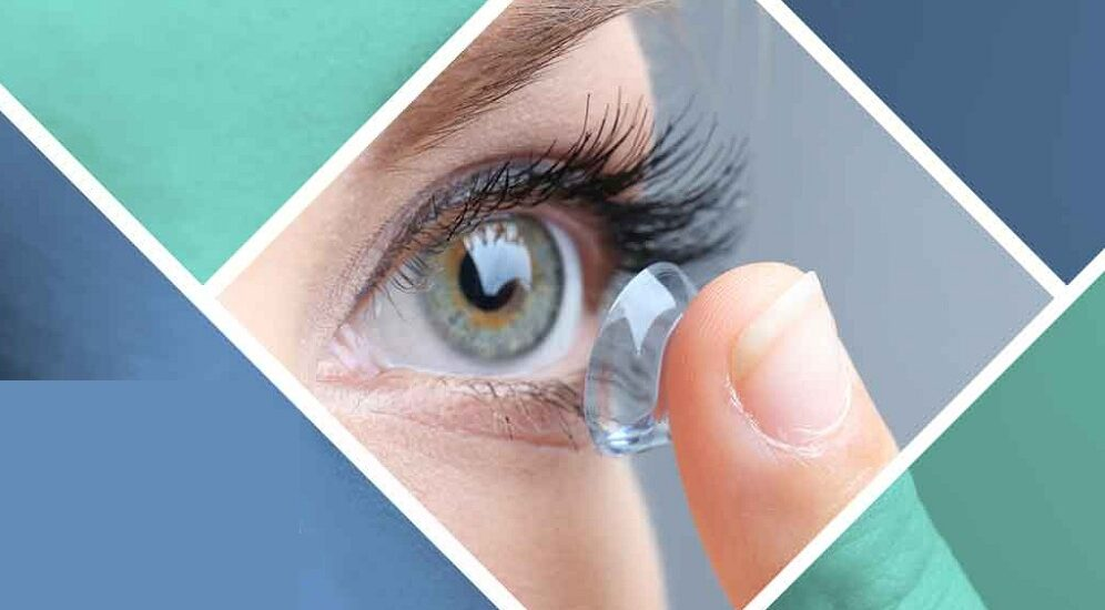 لنز طبی برای قوز قرنیه : از لنزهای سخت تا لنزهای تمای هیبریدی
