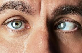 درمان انحراف چشم در بزرگسالان