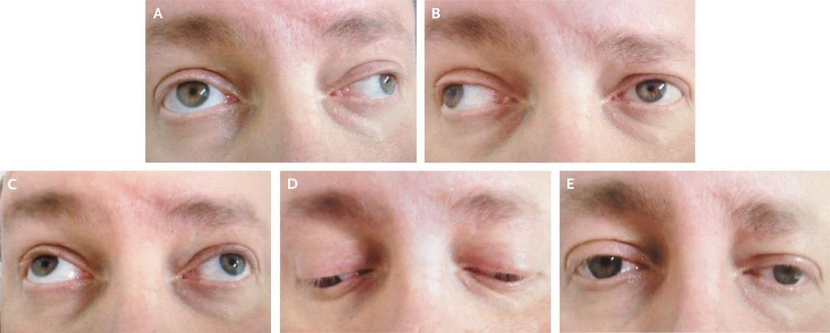سکته چشمی چیست؟