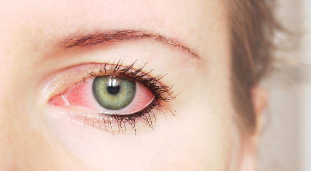 ۸ دلیل برای قرمزی و سوزش چشمها بعد از گذاشتن لنز