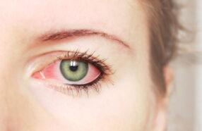 قرمزی و التهاب چشمها بعد از استفاده از لنزهای تماسی: ۸ دلیل معمول و راهحل آنها