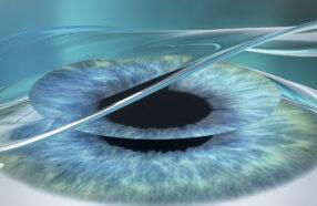 فرق عمل پی آر کی (PRK) چشم با لازک چیست؟