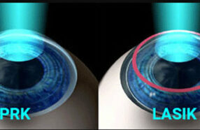 فرق عمل پی آر کی (PRK) چشم با لیزیک چیست؟