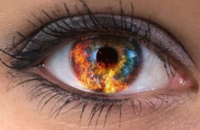 آفتاب سوختگی چشم چیست و چه نشانههایی دارد؟
