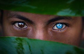 آبی شدن چشمها به قیمت از دست دادن بویایی و شنوایی؛ چیزی در مورد سندرم واردنبرگ شنیدهاید؟