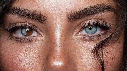 چرا رنگ دو تا چشم بعضی از آدم ها با هم فرق دارد؟