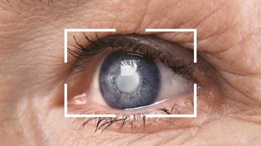 7 بیماری خطرناک که از راه چشم تشخیص داده میشوند